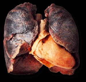 Nikotinoff - Có hiệu quả không? Original sản phẩm có tốt không? Là thuốc gì?