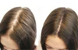 Hair MegaSpray - mua ở đâu? Thuốc bán ở đâu? Có bán ở hiệu thuốc không? Lazada