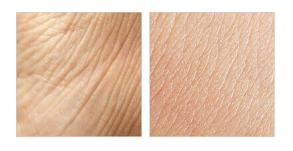 Nolatreve Skin - Việt nam bao nhiêu tiền? Giá rẻ
